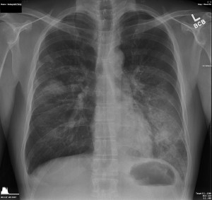 This is what my lungs looked like as Death approached.
